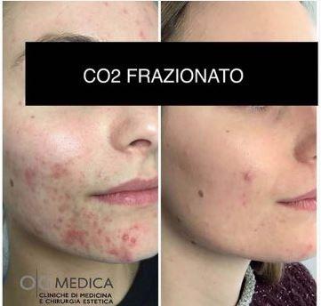 | OGMedica -Clinica di Medicina Estetica -Dr. Castorina Laser CO₂ frazionato e chirurgico