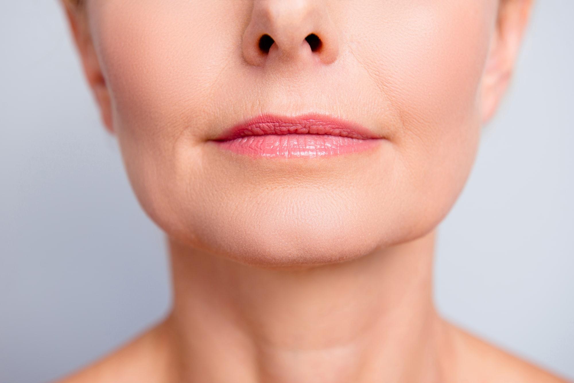 Filler labbra ringiovanimento (Lip lift non chirurgico)