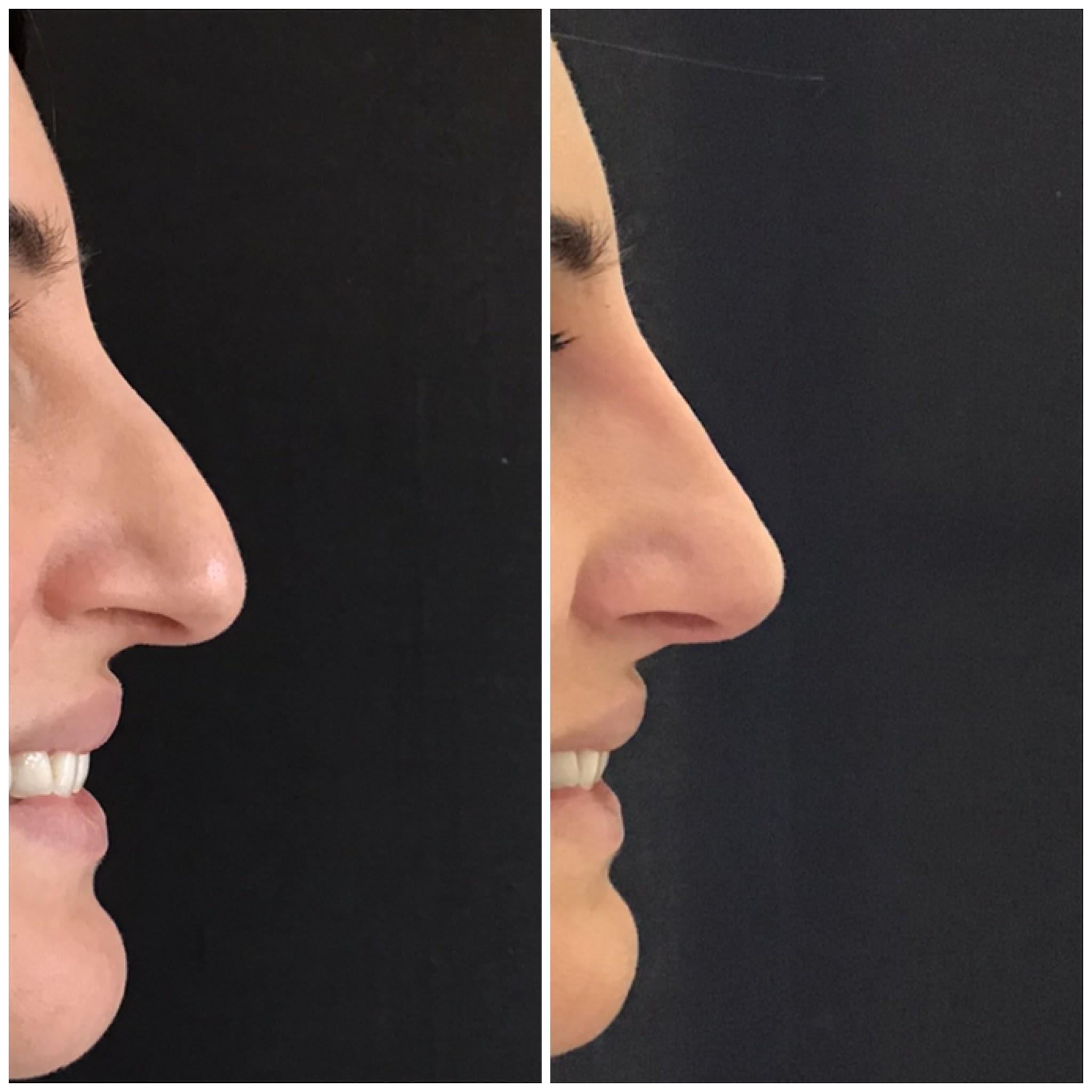 | OGMedica -Clinica di Medicina Estetica -Dr. Castorina Prima e Dopo