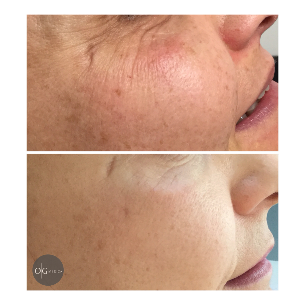 | OGMedica - Clinica di Medicina Estetica -Dr. Castorina Botox