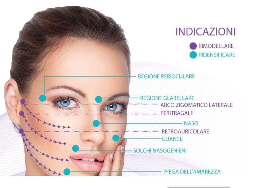 | OGMedica - Clinica di Medicina Estetica -Dr. Castorina Fili di Trazione Viso