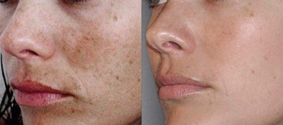   OGMedica - Clinica di Medicina Estetica -Dr. Castorina Peeling Chimico Viso