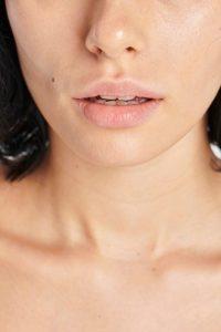 Acido Ialuronico Labbra Riempite