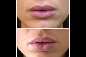 | OGMedica - Clinica di Medicina Estetica -Dr. Castorina Acido ialuronico per il riempimento delle labbra: tutto quello che devi sapere