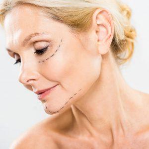 Face Counturing non chirurgico 1-min