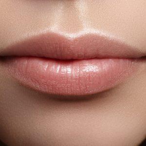 filler labbra catania