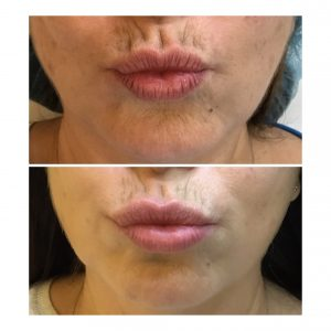 lip lift catania